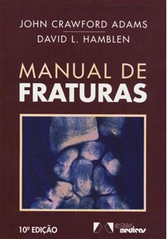 MANUAL DE FRATURAS