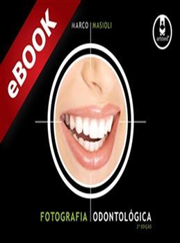 Fotografia Odontológica - 2.ed. - eBook