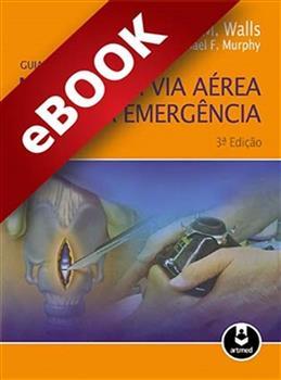 Guia Prático para o Manejo da Via Aérea na Emergência - eBook