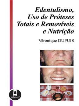 EDENTULISMO. USO DE PROTESES TOTAIS E REMOVIVEIS