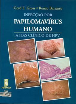 Infecção por Papilomavírus Humano