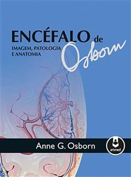 ENCEFALO DE OSBORN: IMAGEM. PATOLOGIA E ANATOMIA