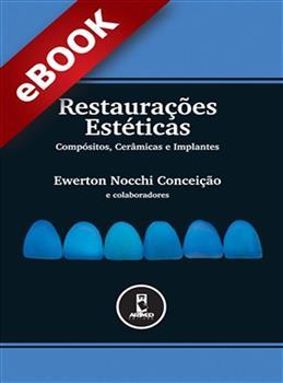 Restaurações Estéticas - eBook