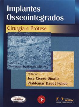Implantes Osseointegrados