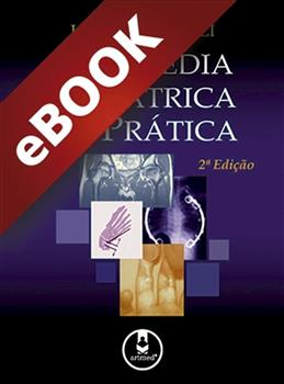 Ortopedia Pediátrica na Prática - eBook