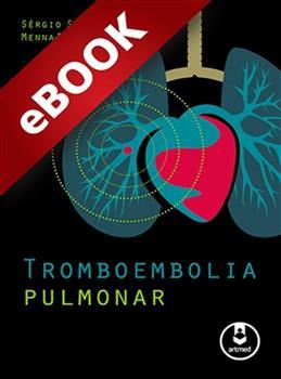 Tromboembolia Pulmonar - eBook
