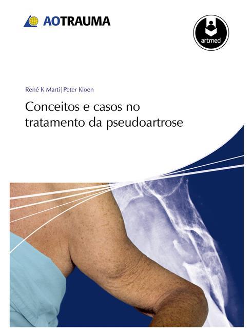 Conceitos e Casos no Tratamento da Pseudoartrose