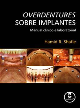 Overdentures sobre Implantes