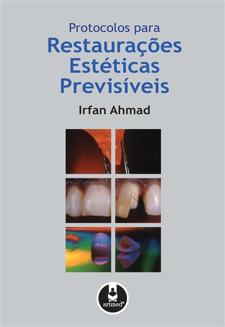 protocolos para restaurações estéticas previsíveis